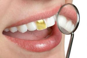 استفاده از دندان طلا,مرد,حرام,دندان طلا,زینت